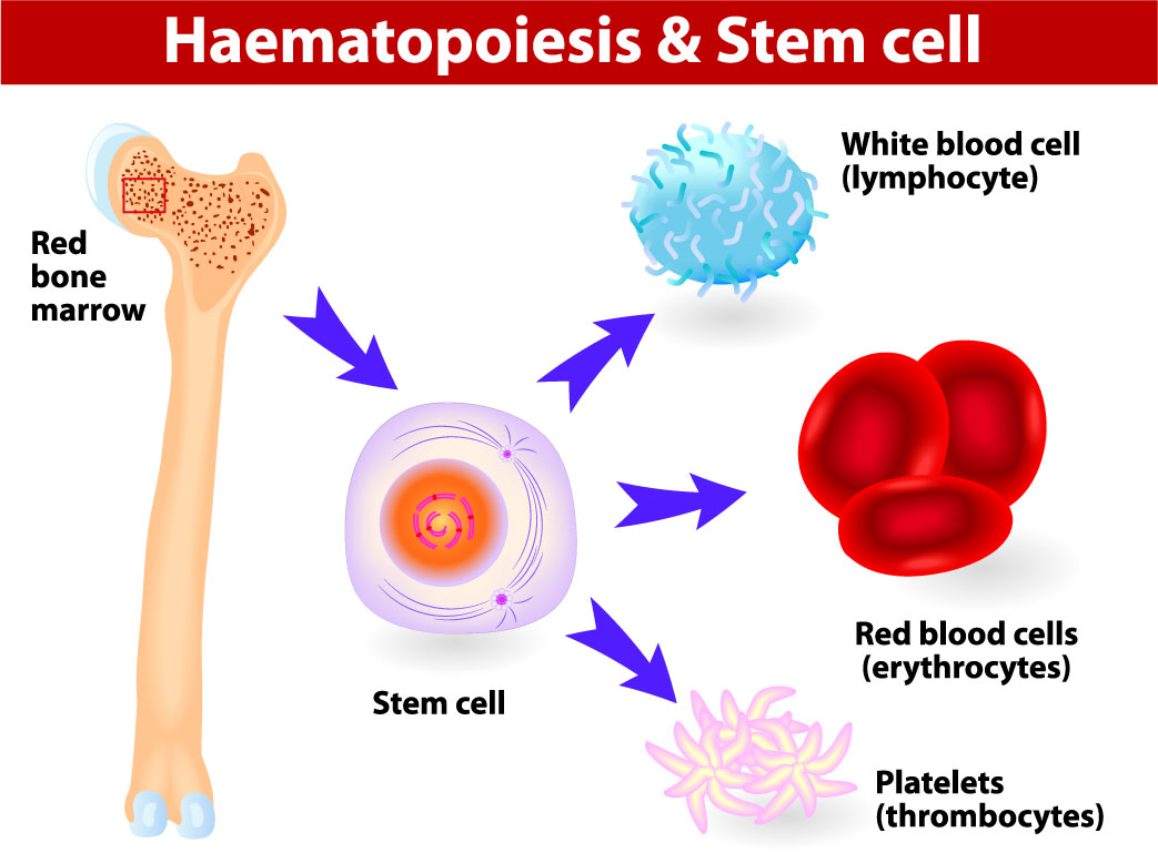 Mixed Chimerism Post-Hematopoietic Stem Cell Transplant (HSCT) for X
